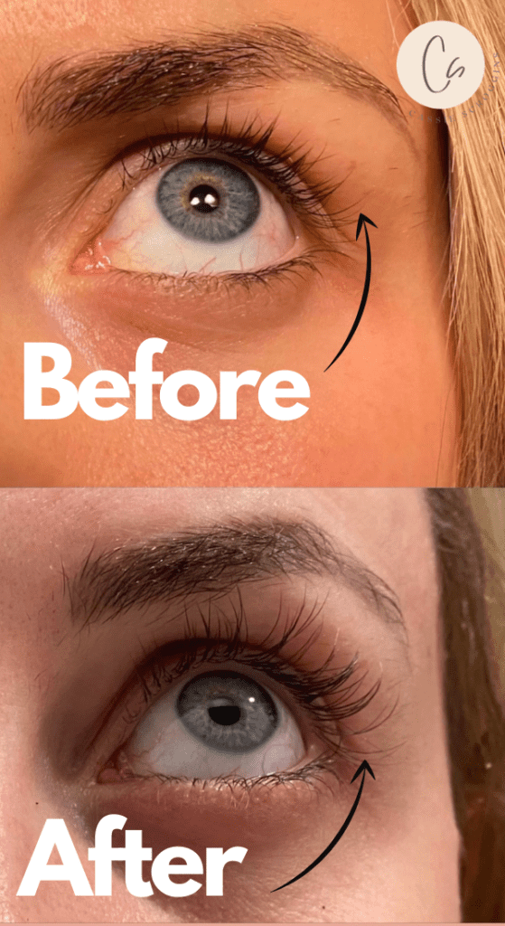 my runway eyes review before and after